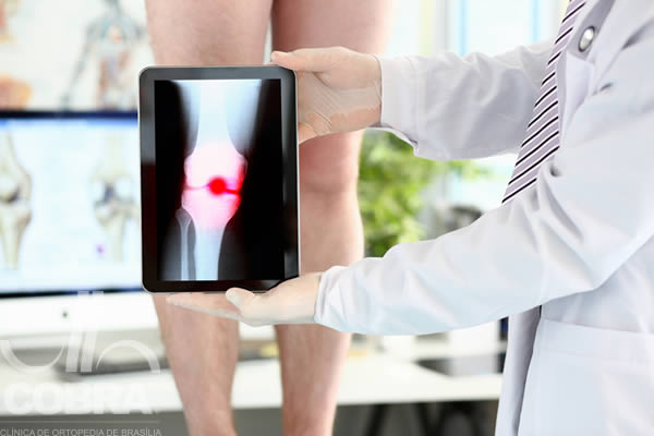 ortopedista especialista em joelho brasilia